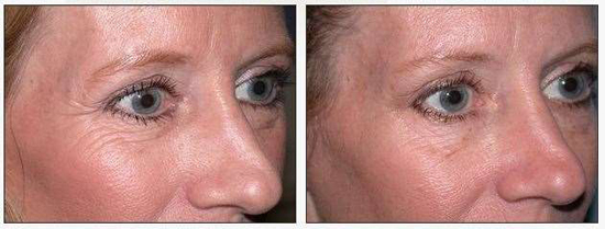 botox for under eye wrinkles before and after