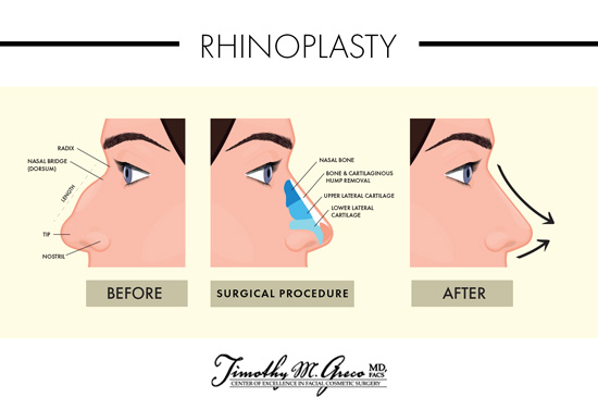 Rhinoplasty in the Philadelphia area may involve Dr. Timothy M. Greco reducing a nasal hump.